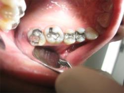 otturazioni_denti