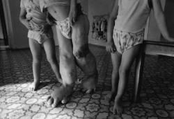 Vittime del disastro di Chernobyl
